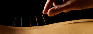 Acupuncture Camberwell