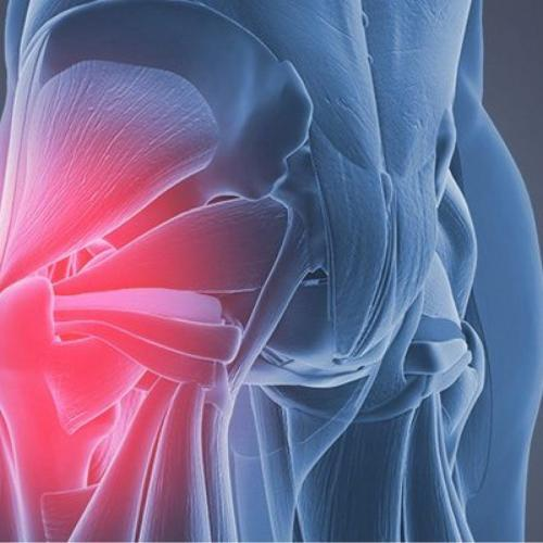 Gluteal Tendon Rehabilitation