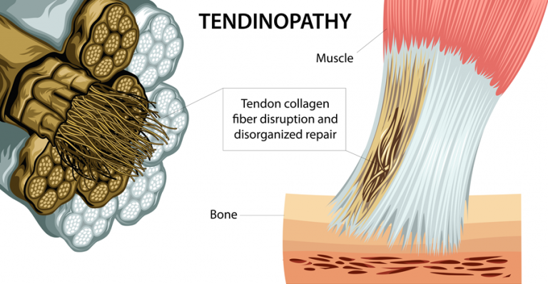 Physiotherapy for tendon injury